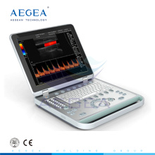 AG-BU005 Advanced and convenient hospital notebook color doppler ultrasound system