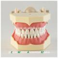 32 pcs Dentes Removíveis de Silicone Gum Ensinar Modelo Dental 13008, Dentes de Substituição Siut para Frasaco Jaw