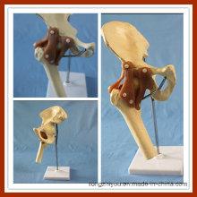 Модель функционального тазобедренного сустава