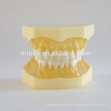 Modelo dental médico anatômico modelo 13013 da mandíbula da gengiva macia transparente anatômica