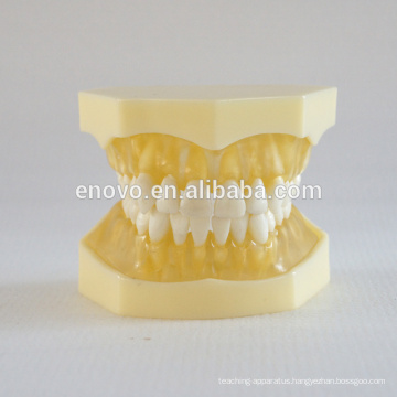 China Medical Anatomical Model Transparent Soft Gingiva Dental Jaw Model 13013