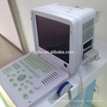 equipo de diagnóstico de ultrasonido médico portátil y ultrasonido escáner corporal y ultrasonido con pesudo color DW360