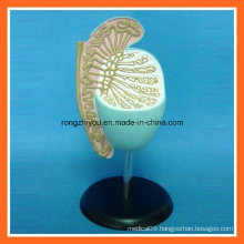 Plastic Human Enlarged Testis Anatomical Model for Educational