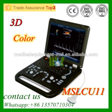 MSLCU11 Farbe Doppler Ultraschall Maschine 3D Farbe Doppler Ultraschall Preis mit niedrigem Preis