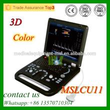 MSLCU11 Appareil d'échographie doppler couleur Système d'échographie Doppler couleur 3D à bas prix