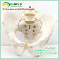 PELVIS04 (12341) Adult Männlichen Becken Modell mit 2 stücke Lendenwirbelsäule, Medizinische Anatomische Becken Skelett Modell