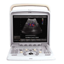 PT405 4D portátil Color Doppler