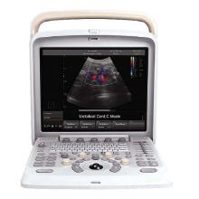 Machine d'ultrason Doppler 4D Portable en couleurs