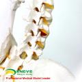 SKELETON01 (12361) Medical Science Life-size 170cm Skeleton Medical Anatomical Models