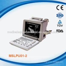 La máquina ultrasónica / escáner portátil más barata MSLPU01-M