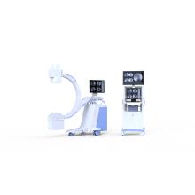 Mobiles Hochfrequenz-C-Bogen-System für maschinelle Radiologie