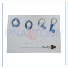 PNT-0571 modelo de esperma de alta calidad