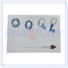 Modèle de sperme de haute qualité PNT-0571