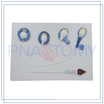 PNT-0571 hochwertiges Spermienmodell