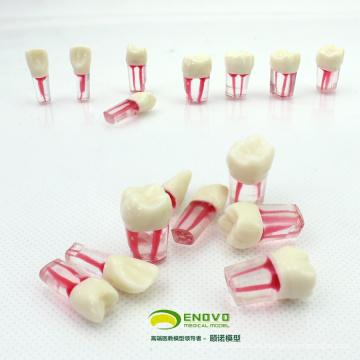 TOOTH04 (12577) Modelo de diente endodóntico de canal de raíz teñido para entrenamiento de llenado de raíz Canla, dientes Endo