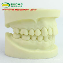 DENTAL05(12564) Cavity Preparation Jaw Model for Dental Student Training