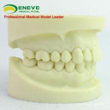 DENTAL05 (12564) Modelo de Mandíbula de Preparação de Cavidade para o Treinamento de Aluno Dental