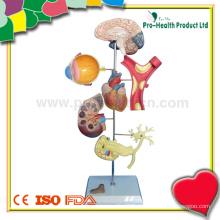 Modelo de ensino médico de hipertensão plástica