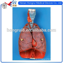 ISO Larynx, Heart And Lung Model