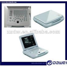 Kit ginecológico del sistema del explorador del ultrasonido humano de la computadora portátil de China (DW500)