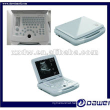 China laptop human ultrasound scanner system gynecological kit(DW500)