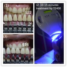 Вертикальная клиника Используйте профессиональную систему отбеливания зубов