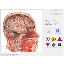 vector 8d nls escáner de salud de biorresonancia lris