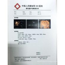 Лазер белый ПВХ injket двусторонней печати для цветной допплер лист / гастроскопия печати ПВХ