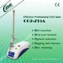 Laser CO2 para ginecologia