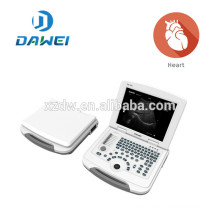 Laptop portable ultrasound system & wholesale medical equipment DW-500