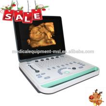 Máquina portable del ultrasonido 3d / máquina handheld del usg / ultrasonido handheld MSLPU34A