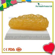 Modelo de gordura anotômica de £ 2