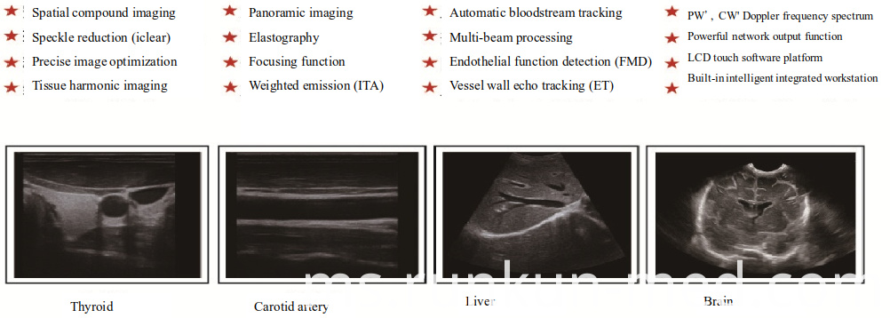 4D Imaging Color Ultrasound Machine