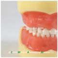24pcs dentes removíveis padrão das crianças modelo dental 13003