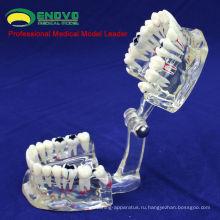 DENTAL09(12568) взрослого человека Размер прозрачный устной модель заболевания