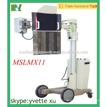 MSLMX11-M 50mA Bedside Röntgengerät Mobile Röntgengerät mobile digitale Röntgengerät