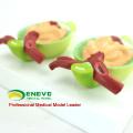 VENDER 12436 Modelo anatómico patológico de proteína de la orina en riñón para educación
