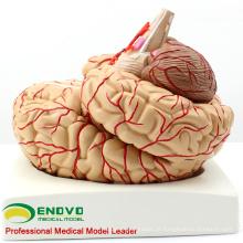 BRAIN07 (12404) Cérebro Anatômico Humano com Artérias - 9 Partes, Modelos Anatômicos> Medical Brain Models