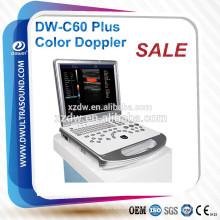 medizinische Ausrüstung DW-C60 Plus DAWEI Farbdoppler-Ultraschallgerät u. klares Bild Laptop-bewegliches Farbdoppler 3D