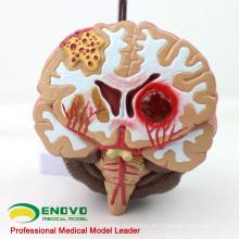 BRAIN10 (12408) Modelo anatómico médico de la enfermedad cerebral, modelo anatómico de la malformación de la arteria cerebral