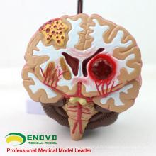 BRAIN10 (12408) Modèle anatomique médical de la maladie du cerveau, modèle anatomique de la malformation de l'artère cérébrale