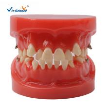 Kieferorthopädisches Zahnmodell