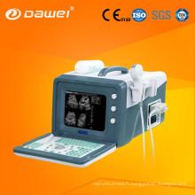 le cou des vaisseaux à ultrasons à faible débit et l'écho portable (DW3101A)