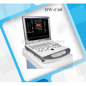 Escáner de ultrasonido 3D y ecografía Doppler color portátil DW-C60