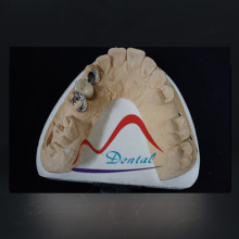 Individually made dental Maryland bridge