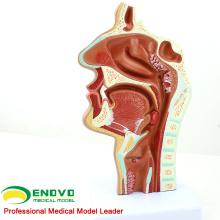 THROAT04 (12508) Pathologie-Nasenhöhlenschnittmodell, Full Size, Ohr-Augen-Nasen-Ohren-Modelle> Nasenhöhlenmodelle