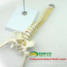 SPINE08 12381 Medizinische Wissenschaft Tabelle Display Flexible Wirbelsäule Skelett Bildung Modell Becken und Beinhälfte