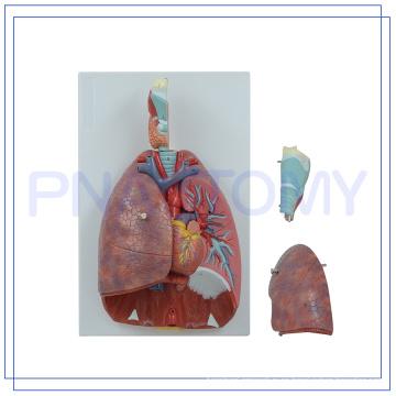 PNT-0430 tamaño de vida 7 partes Larynx corazón y modelo de pulmón