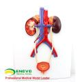 VENDA 12422 Sistema Urogenital Humano, a Bordo, Modelos de Anatomia> Modelos Urinários