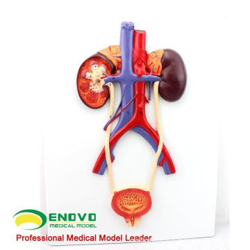 SELL 12422 Humanes Urogenitalsystem, An Bord, Anatomie Modelle> Harnwege